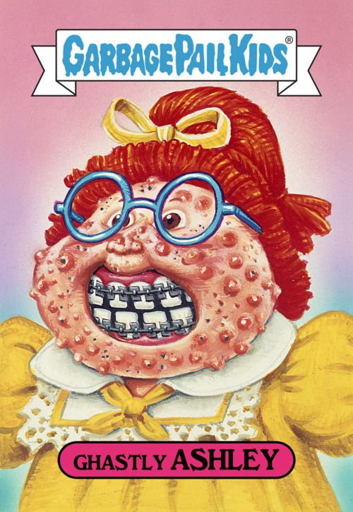 Garbage Pail Kids - Wow!!!! No wonder we were so mean as kids. Poor little girl breaking out.