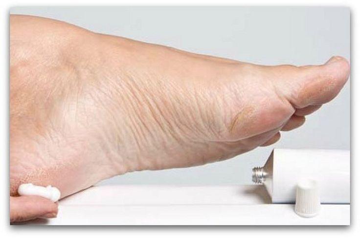 Descubre cómo conseguir unos pies perfectos con CONSEJOS DE BELLEZA.