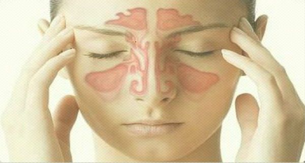 This Paranasal Sinus Disease Treatment Will Help You Combat The Disease In 5 Days!