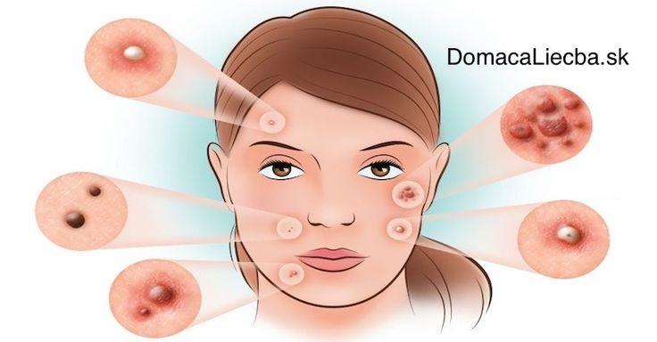 Po celé generácie využívali ľudia z Maroka a ostatných krajín Blízkeho východu tento olej pre liečbu množstva problémov s pokožkou a vlasmi.
