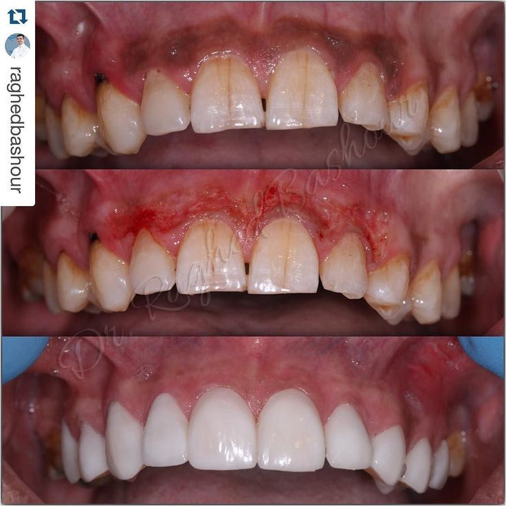 #Repost @raghedbashour with @repostapp.  depigmentation of the gingiva (removing the dark color) using ErCr:YSGG waterlase laser without any pain or anesthesia healing will take 5 to 7 days only. #moderndentistry #advanced #laser #dentistry #dental #odontologia #odonto #waterlase #dentistrymyworld #mydubai #uae #identistry #laserdentistry #iplus #biolase by dentist_world_1 Our General Dentistry Page: http://www.myimagedental.com/services/general-dentistry/ Google My Business…