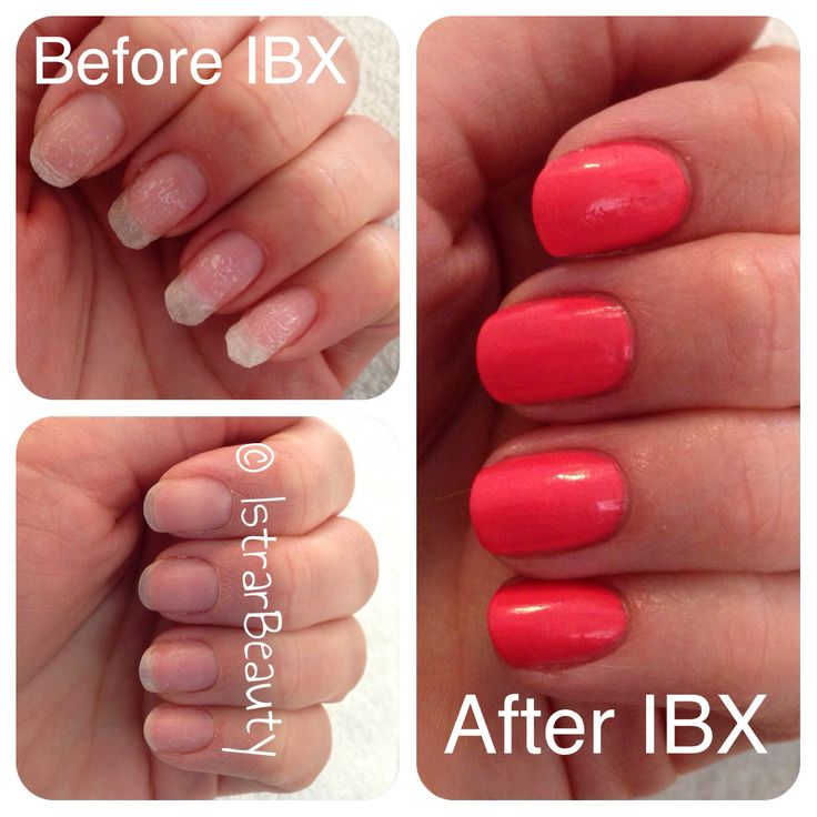 Before & after IBX.  GEWELDIGE sterkere en mooiere nagels!