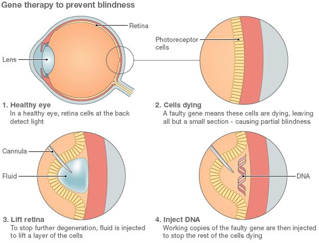 Surgeons in Oxford, United Kingdom have used Gene Therapy to improve and treat patients who were going blind. In time, it could also be used to treat common forms of blindness.