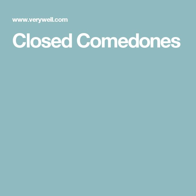 Closed Comedones