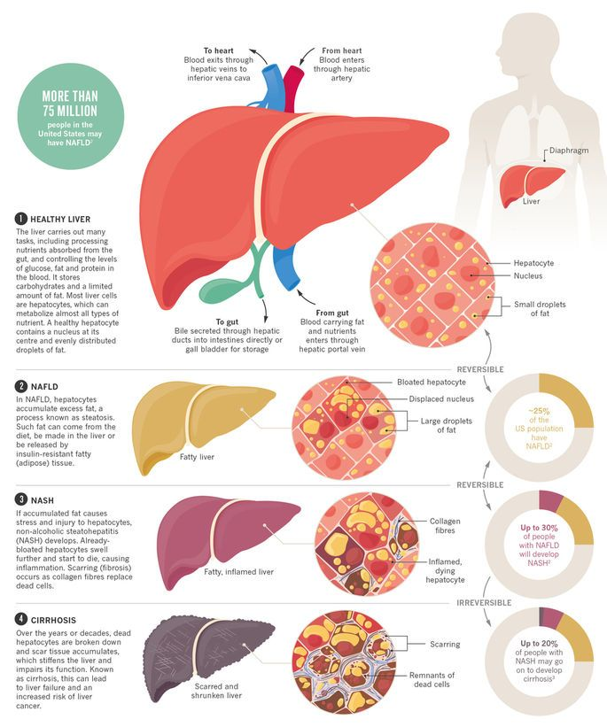 68 best fatty liver diet eating healthy with fatty liver images on you might think that fatty liver is mostly caused by alcohol but non alcoholic ccuart Gallery