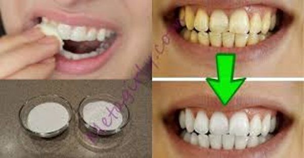 Τα κίτρινα δόντια είναι ένα αρκετά ενοχλητικό θέμα με αποτέλεσμα πολλοί άνθρωποι, ειδικά οι καπνιστές, να αποφεύγουν να χαμογελούν και να γελούν μπροστά στ