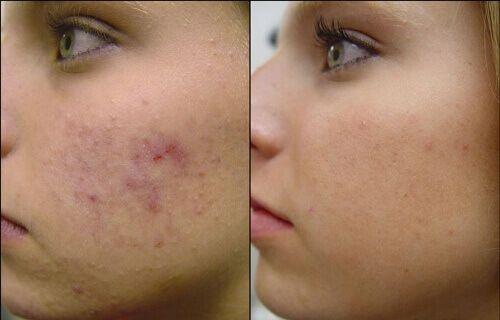 Aknebenägen hud kräver speciell vård för att bli av med överflödigt fett, döda hudceller och gifter som byggs upp i huden. Läs några tips mot akne här,