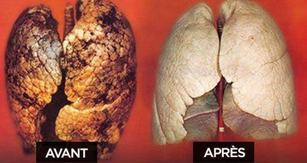13 herbes ou solutions pour arrêter de fumer, nettoyer ses poumons des goudrons et dire adieu à la cigarette et au tabac.