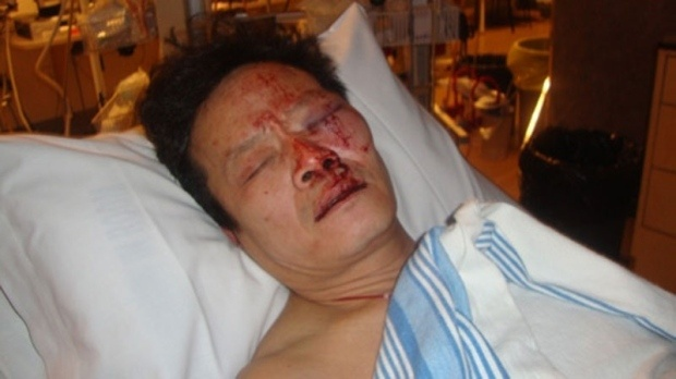 Yao Wei Wu, Victim of Police Brutality