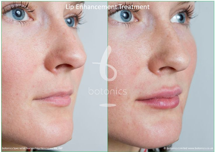 Restylane Dermal Filler Lip Enhancement Treatment For
