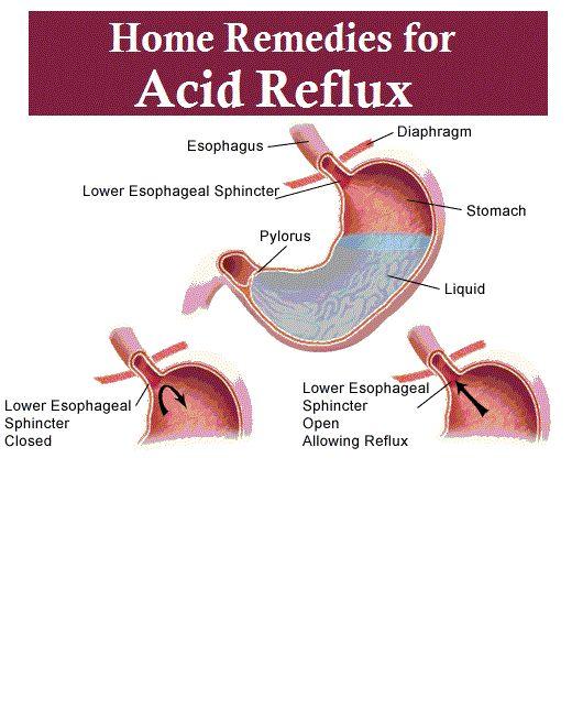 Home Remedies for Acid Reflux (homeremediesforlife.com) Heal