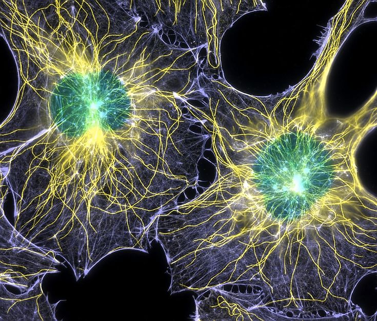Actin (purple), microtubules (yellow), and nuclei (green) are labeled in these cells by immunofluorescence. This image won first place in the Nikon 2003 Small World photo competition.