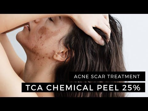 Enerpeel TCA Chemical Peel 25% 2 Layers Acne Scar Treatment -  CLICK HERE for the Acne No More program #acne #acnetreatment #acnetips #acnecare My TCA chemical peel progress and results. Read my complete review here:  I'll be doing TCA twice more in conjunction with a Dermastamp treatment. So stay tuned for more! ***The TCA peel was done at a... - #Acne