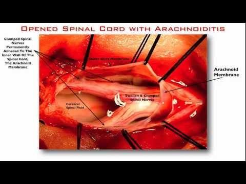 steroids for fibromyalgia pain
