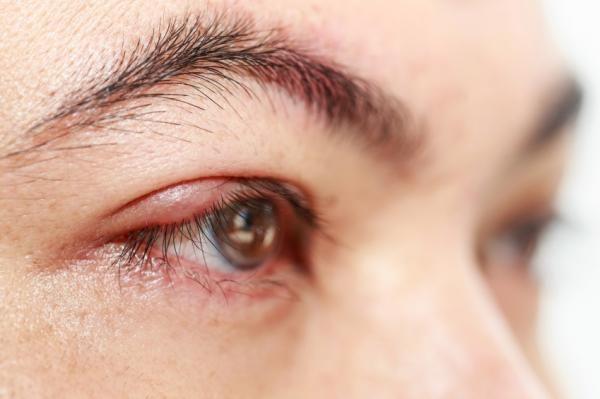 Acordou com olho inchado? Descubra as possíveis causas e tratamentos para o problema!  #olhoinchado #terçol #conjuntivite #olho #comotratar
