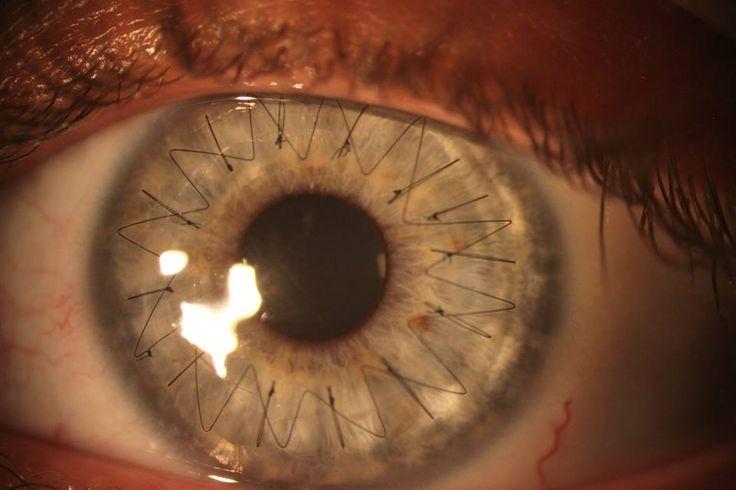 Closeup of eye stitches after a cornea transplant!