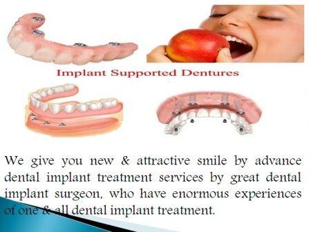 Top Dentist in New Delhi http://dentaltreatmentdelhi.in/