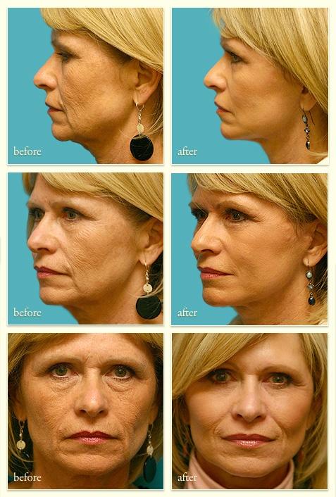 Female - 60yrs - Face Lift & Profractional Laser Peel