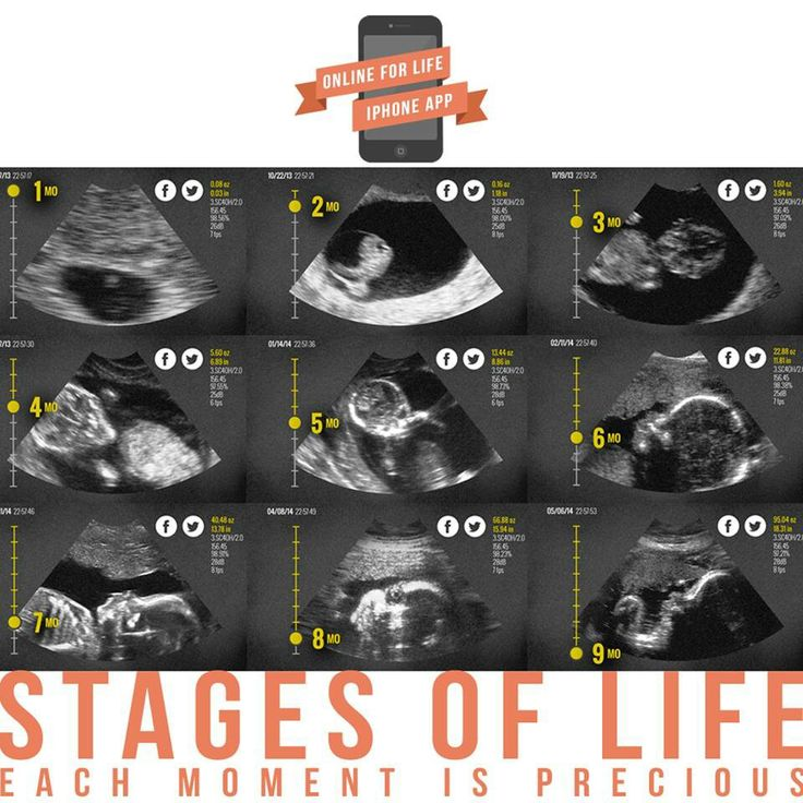 Stages of life. Each moment is precious. #prolife