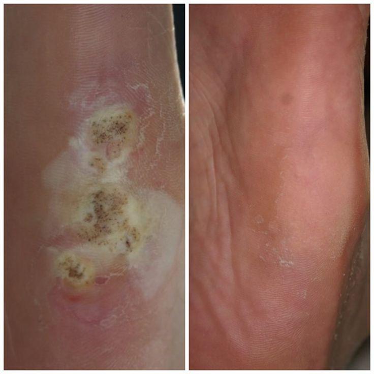 Natural Skin Tag Removal Uk