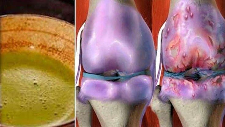 Esta receita está a dar a volta ao mundo! Ela ajuda a curar os joelhos e a restaurar os ossos e articulações rapidamente! - Receitas e Afins
