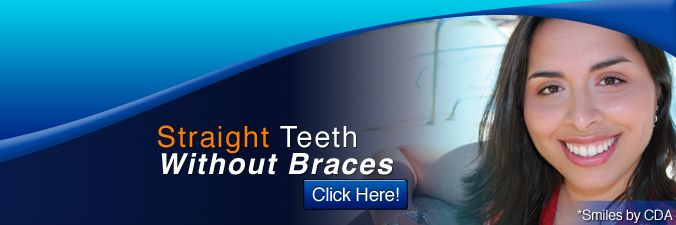 Invisalign clear braces costs more In our office, traditional braces and Invisalign cost the same and in some cases is less. Prices can vary...