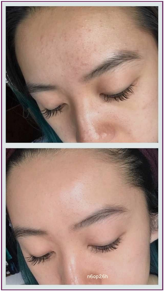 Redditor With Fungal Acne Shares Her Dramatic Before And After Photos Acne Routine Forehead Acne Lotion For Oily Skin