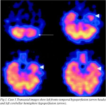 """FIBROMYALGIA: A new test leads to a cause and maybe a cure. """"Fibromyalgia may be related to a global dysfunction of cerebral pain-processing,"""""""