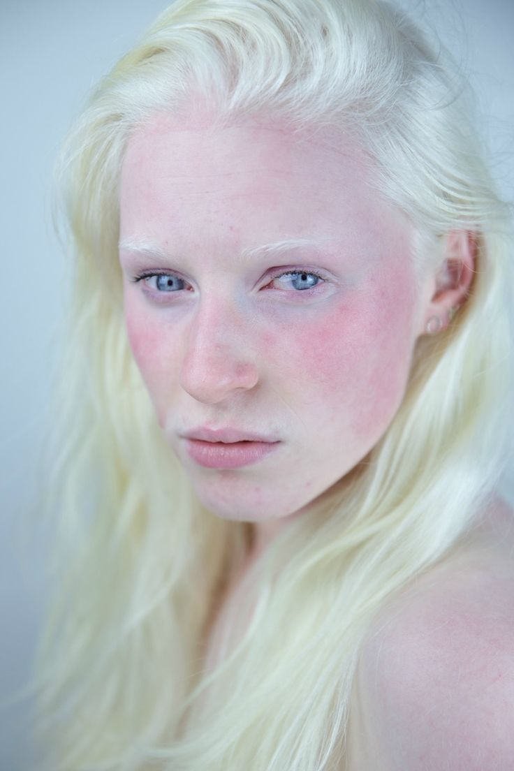 I took a picture of a beautiful girl with albinism. #elsa