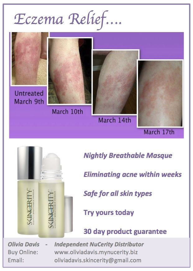 Eczema can be very painful but now there is an answer. Skincerity contains patented technology which allows your skin to heal itself under a breathable masque each night. Acting like a second skin, Skincerity allows oxygen in but doesn't allow moisture out. So you wake up to soft, hydrated and repaired skin in the morning. Its never been so easy to have healthy skin and finally some relief for eczema sufferers. Order yours today. From USD $69.95