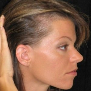 What are some effective alopecia treatments?