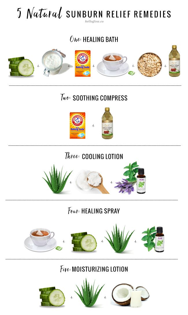 5 remedies for natural sunburn relief that will keep your skin moisturized and help prevent peeling.
