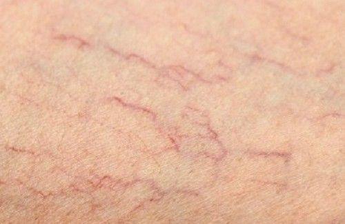 Remédios para as veias de aranhas nas pernas
