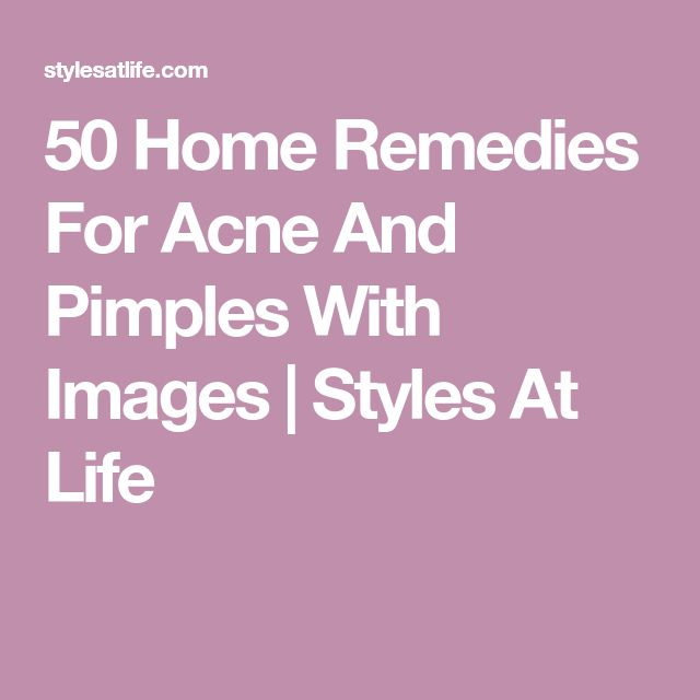50 Home Remedies For Acne And Pimples With Images | Styles At Life