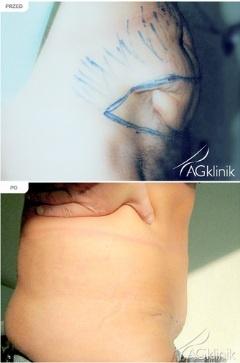 Zdjęcie przed i po zabiegu plastyki brzucha