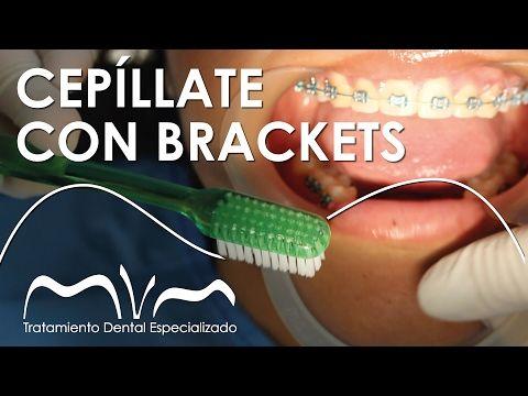 CEPÍLLATE LOS DIENTES CON BRACKETS ¡ APRENDE YA! | Cepillado con Brackets vestibulares - YouTube