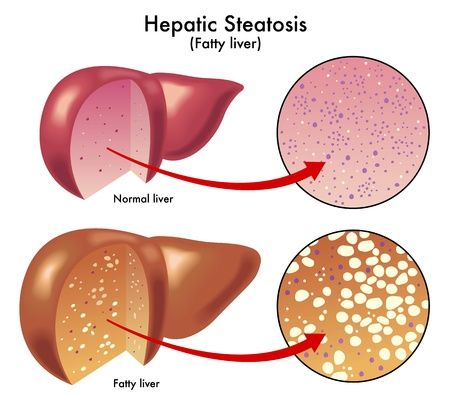 Non-alcoholic fatty liver disease or NAFLD constitutes a group of conditions in which excess fat accumulates in the liver of people who drink little or no alcohol.