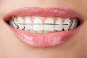 Hinsdale Orthodontist's Guide to Straight Teeth: After Braces - Thomas Orthodontics