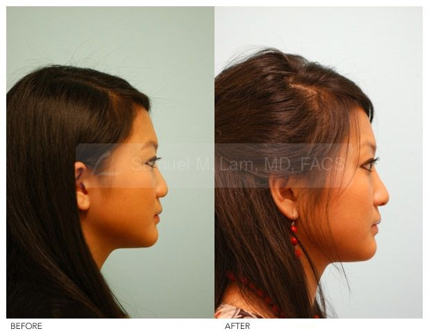 Asian nose job purse