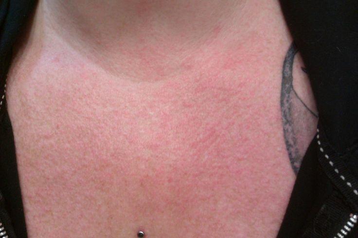 mild lupus rash on face The FLPARENTINGNEWS    Blog Archive lupus rash on neck and chest Pict