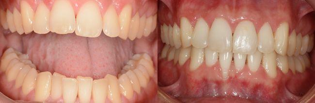 Cómo resolver problemas de apiñamiento con la ortodoncia Invisalign Lite