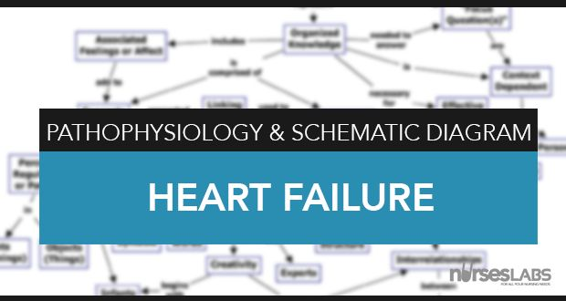 Pathophysiology and schematic diagram of congestive heart failure, right sided heart failure and left side heart failure.