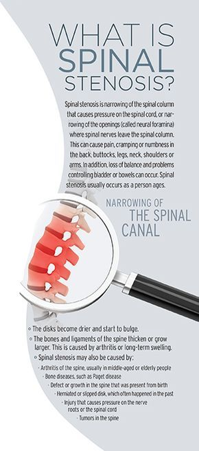 Understanding Spinal Stenosis - and a personal experience with it, as shared by our cover celebrity, Carrie Ann Inaba #spinalstenosis #pain