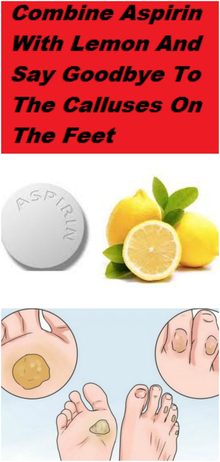 Combine Aspirin With Lemon And Say Goodbye To The Calluses On The Feet
