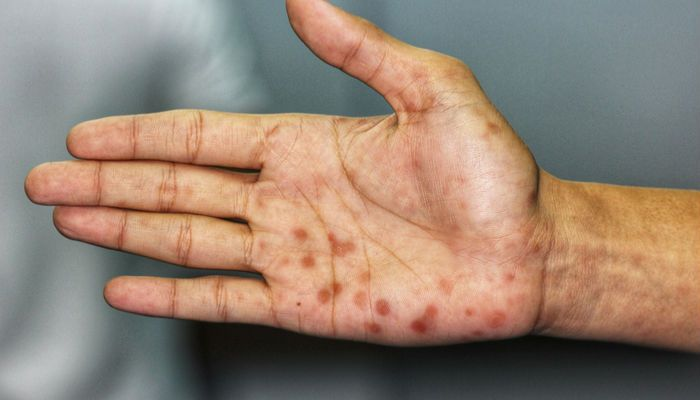 Heart Disease: 10 Warning Signs that Appear On Your Skin | Lupus