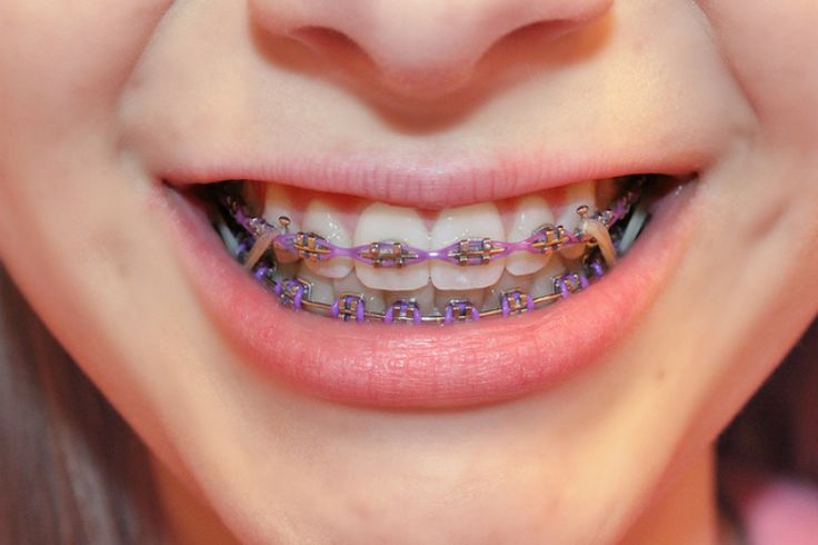 Searching For Why Braces Rubber Bands Effectiveness And