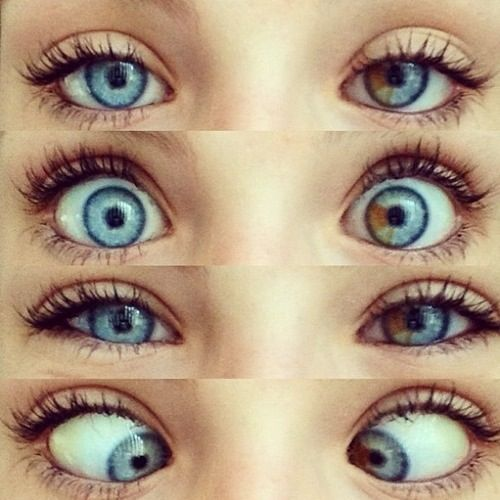 Look at her right eye, it has a brown place in it!!WOW