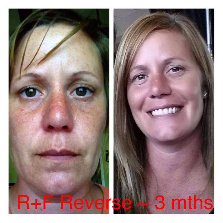 Wow!! Check out Natalie's AMAZING Results after using Rodan + Fields REVERSE Regimen for just 90 DAYS!!! No foundation in either pic! Her brown spots have disappeared and her skin is RADIANT!!!   Are you ready to REVERSE your sun damage and get your GLOW back? 60-Day Money Back Guarantee ~ nothing to lose except those spots! SAVE 10-25%, get FREE Shipping when you sign up as a Preferred Customer! www.swallace870.myrandf.com