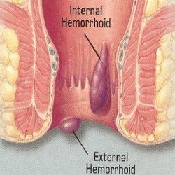 Five Home Remedies For Bleeding Hemorrhoids