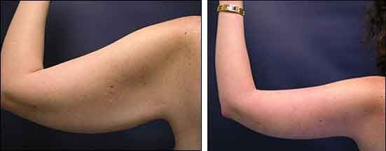 Arm with liposuction 6 – Liposuction before and after – #arm #Liposuction